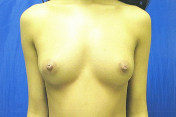 Breast Augmentation Before and After Pictures Virginia Beach