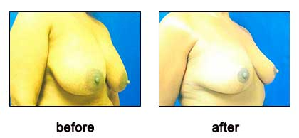 Breast Reduction, Dr. Kevin Bounds, Plastic Surgery of Virginia Beach, VA