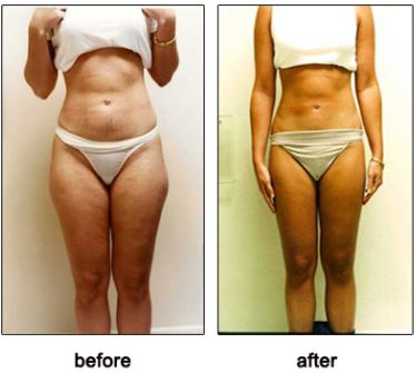 How to slim down fast with herbalife image 5