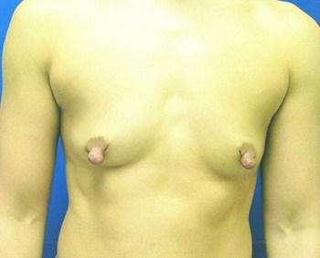 Breast Augmentation, Dr. Kevin Bounds, Plastic Surgery of Virginia Beach, VA