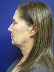 Facelift Before and After Pictures Virginia Beach, VA