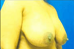 Breast Reduction Before and After Pictures Virginia Beach, VA