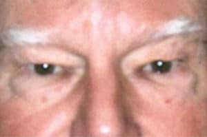 Blepharoplasty Before and After Pictures Virginia Beach, VA