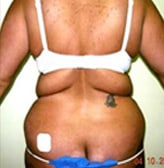 Liposuction Before and After Pictures Virginia Beach, VA