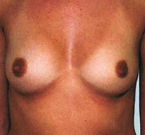 Breast Augmentation, Dr. Kevin Bounds, Plastic Surgery of Virginia Beach, VA