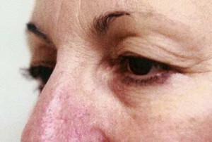 Blepharoplasty, Dr. Kevin Bounds, Plastic Surgery of Virginia Beach, VA