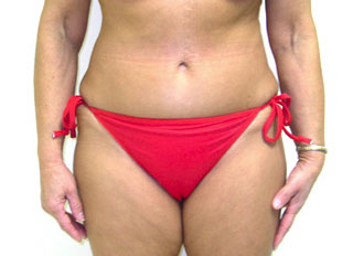 Tummy Tuck, Dr. Kevin Bounds, Plastic Surgery of Virginia Beach, VA